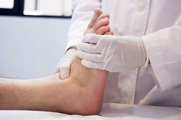 How to Diagnose Peripheral Neuropathy